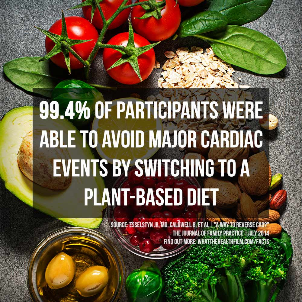 You can stop and reverse heart disease with a plant-based diet.